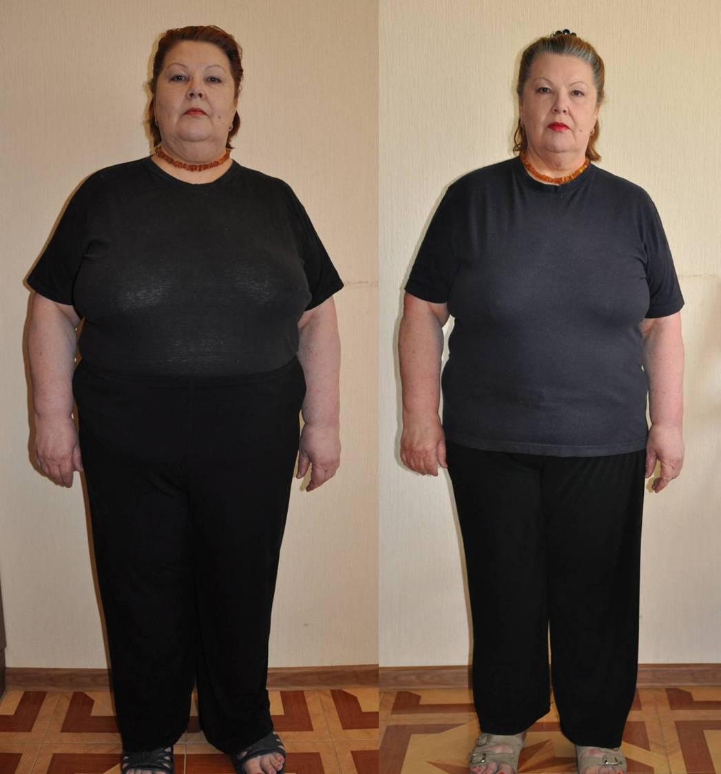 Похудение и нейропатия